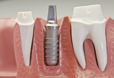 implantaten pijn